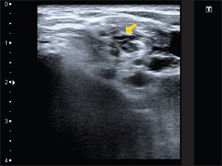 skaelene essay Indication – nonpalpable peripheral pulses translumbar approach: preferred – easier to access descending aorta -left side approach crosses fewer cns arteries (when going down aorta -3j wire preferred disadvantages: -difficult to compress – high incidence of complications -brachial plexus injury axillary artery approach we will write a custom essay sample on vascular interventional .