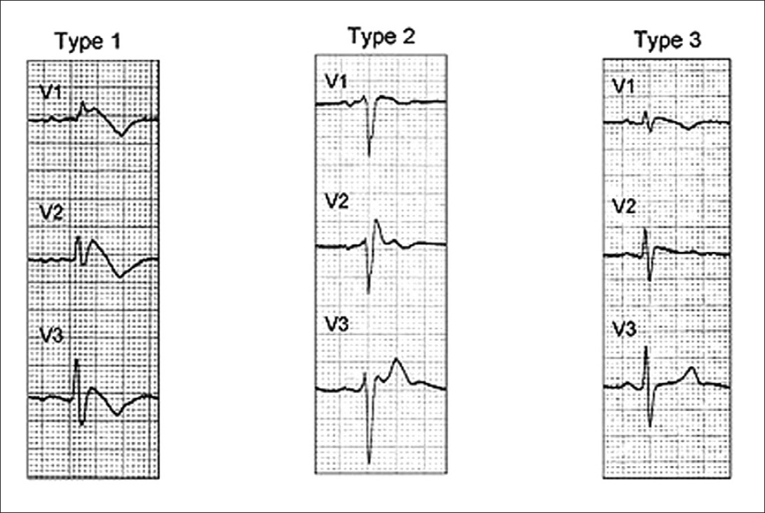 Anaesthetic management of a patient of Brugada syndrome for