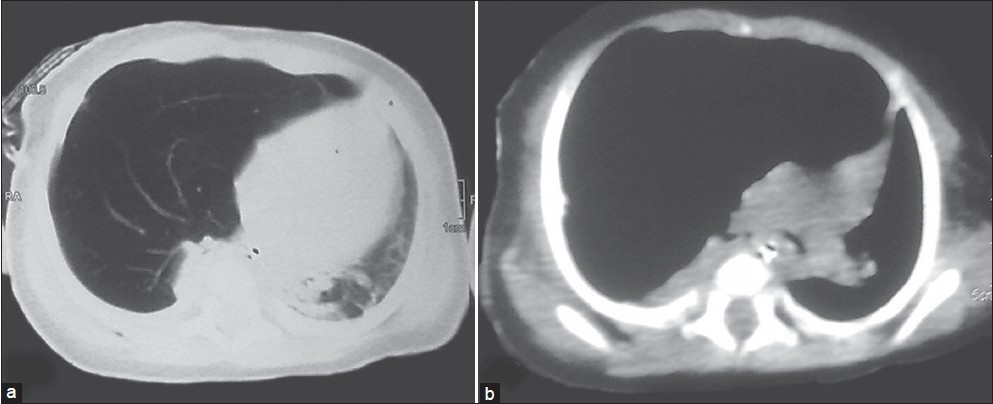 Figure 1 (a and b): CT scan sh owing hyperinfl ated right upper and mid lobes, pruned bronchovascular markings, mediastinal shift to left and atelectatic leftlower lobes