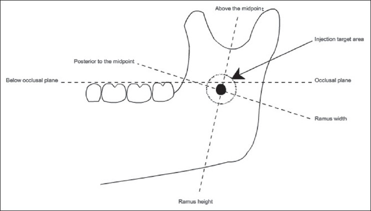 A basic review on the inferior alveolar nerve block