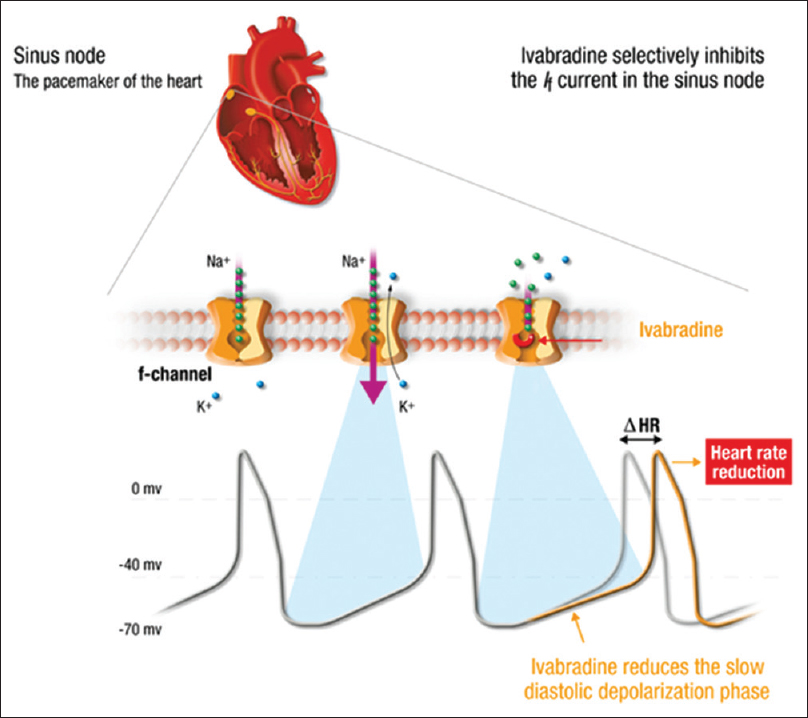 Figure 5: Action of ivabradine on sinoatrial node