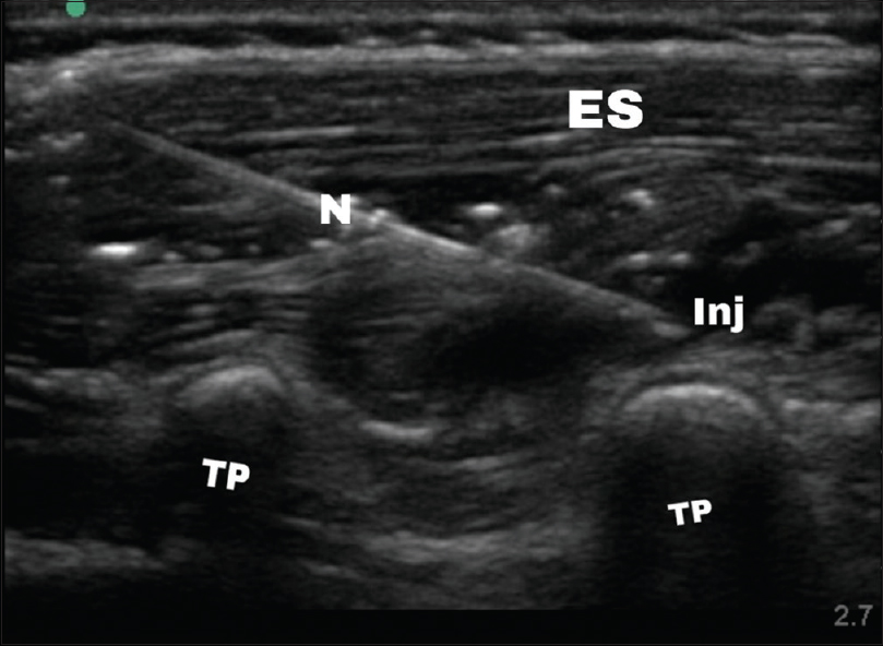 Figure 2: Long axis view at paraspinous region of (first lumbar). TP = Transverse process, ES = Erector spinae muscle, N = Needle, INJ = Injectate between erector spinae and transverse process